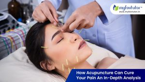 How Acupuncture Can Cure Your Pain An in-Depth Analysis